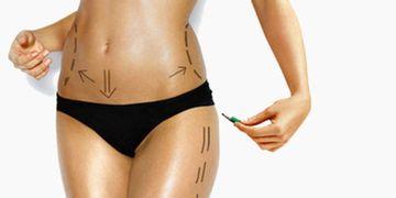 Lipotransferencia o lipoinyección o injerto de grasa.