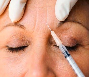 Botox y sus múltiples aplicaciones
