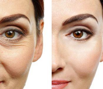 Rejuvenecimiento facial (lifting cervicofacial)