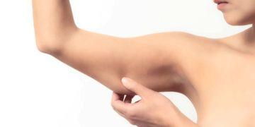 Braquioplastia, la cirugía para conseguir brazos firmes