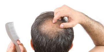 Microtrasplante de cabello la técnica efectiva contra la alopecia
