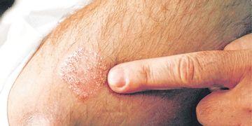 ¿Tienes escamas en la piel? Podrías padecer psoriasis