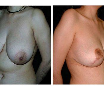 ¿Qué es la mamoplastía de reducción?