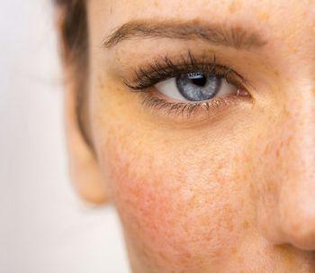Previene y cura tu piel de las manchas del sol