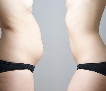 Lipólisis, una opción para eliminar la grasa