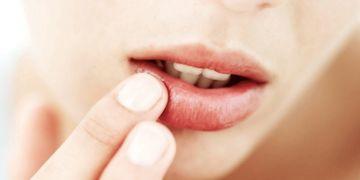 Queiloplastia, la cirugía clave para unos labios perfectos