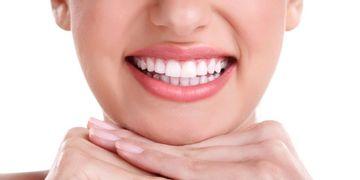 Necesito implantes dentales ¿Cómo decidirme?