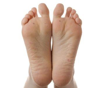 Verrugas en las plantas de los pies...Te lo decimos todo