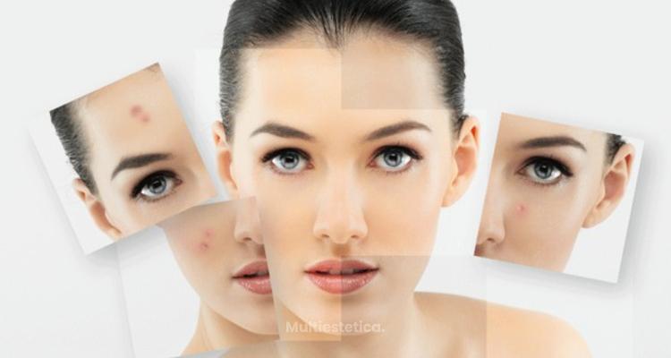 Deshazte del acné con láser
