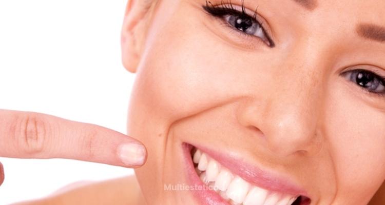 10 cosas sobre blanqueamiento dental láser que te pueden interesar