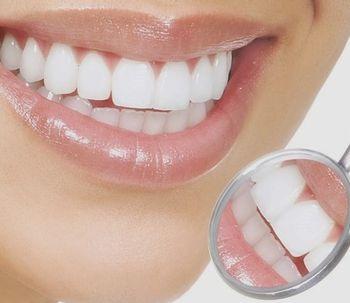 Dientes dañados, soluciónalo con la reconstrucción dental