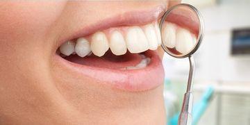 ¿Existen los dientes blancos?
