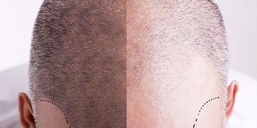 Un aliado óptico para la pérdida de cabello