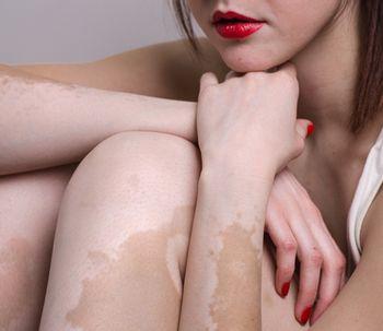 Todo sobre el vitiligo