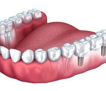 Ventajas de la prótesis dental fija de zirconia