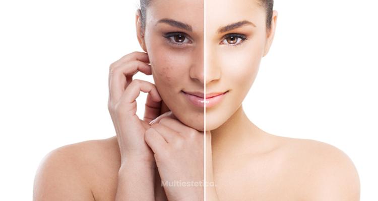 Factores que causan el acné