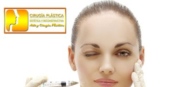 Toxina Botulinica (Botox)