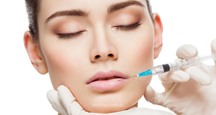Voluminización de labios