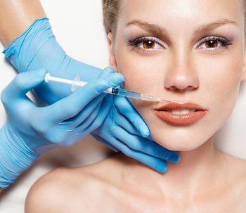 Voluminización y perfilado de labios con Belotero  (ácido hialurónico)