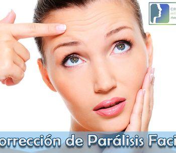¿Qué es una parálisis facial?