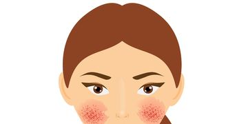 La bacteria causante de la rosácea