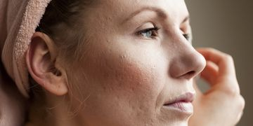 Todo lo que debes saber para eliminar las manchas de la piel
