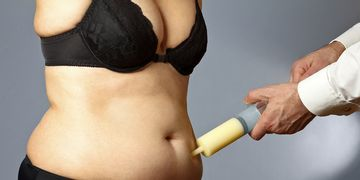 Deshazte de la grasa localizada con hidrolipoclasia