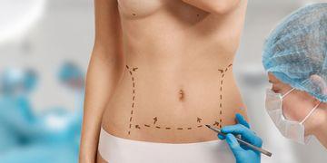 Dudas más comunes sobre la abdominoplastia