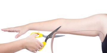 ¿La liposucción de brazo es tan efectiva como la braquioplastia?
