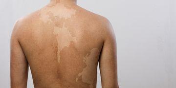Detección y tratamientos para el vitiligo