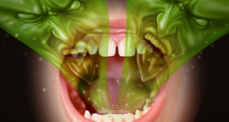Elimina la halitosis con láser