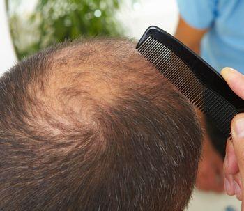 ¿A qué edad te puedes hacer un trasplante de pelo?