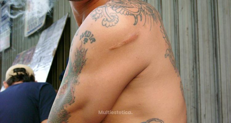 Tatuajes, la mejor opción para ocultar tus cicatrices
