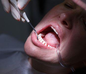 ¿Cómo influye la diabetes en los problemas de salud bucal?
