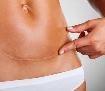 ¿Cómo cuidar la cicatriz de una cesárea?