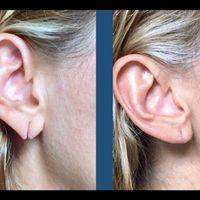¿Por qué ocurren los desgarros  en el lóbulo de la oreja?