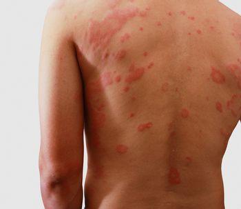 Conoce los tipos de dermatitis