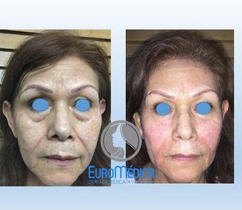 ¿Cómo lograr un verdadero rejuvenecimiento facial?