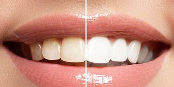 Blanquea tus dientes con la dieta blanca