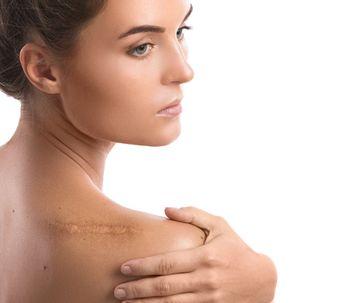 Cicatrices hipertróficas ¡mira cómo tratarlas!