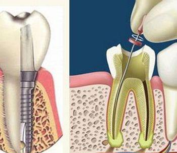 Extracción de dientes y endodoncia
