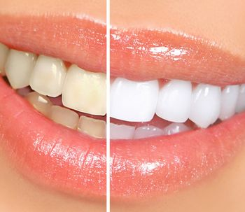 Lo que hay que saber sobre el blanqueamiento dental