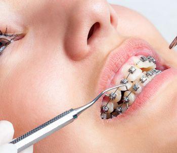 Ortodoncia: preguntas frecuentes