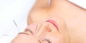 Preguntas comunes sobre la acupuntura