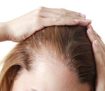 El cómo y el por qué de la alopecia