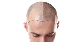 Consejos para antes y después del trasplante capilar