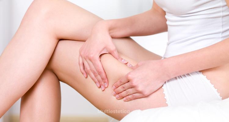 ¿Qué es y cómo tratar el lipedema?