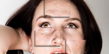 El ácido hialurónico y sus diferentes tratamientos