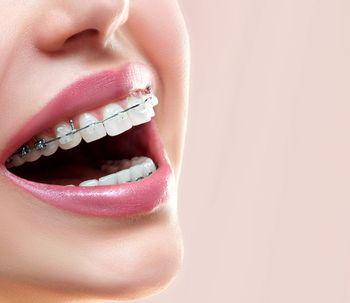 ¿Cuáles son los tipos de ortodoncia?