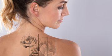 Láser y ablación de macrófagos; métodos seguros para eliminar tatuajes